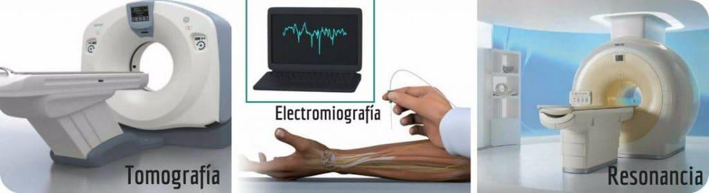 diagnostico hernia de disco